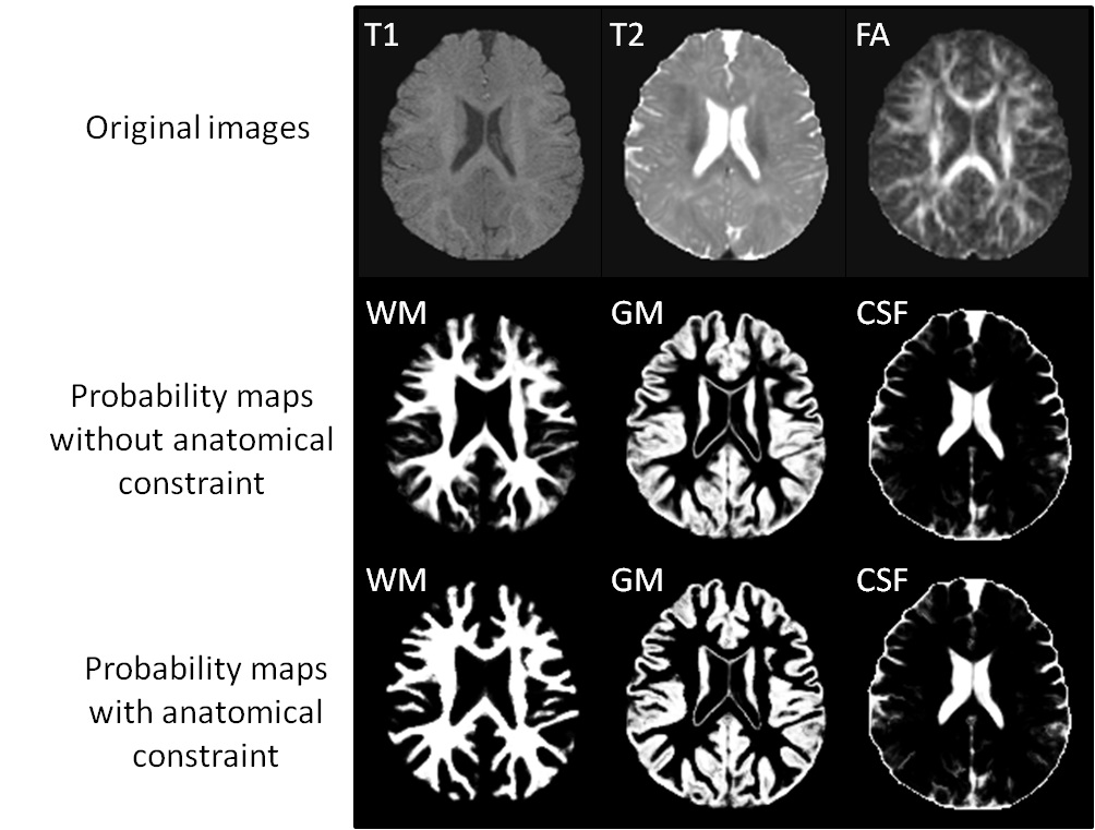 Integration of Sparse Multi-modality Representation and Geometrical Constraint for Isointense Infant Brain Segmentation