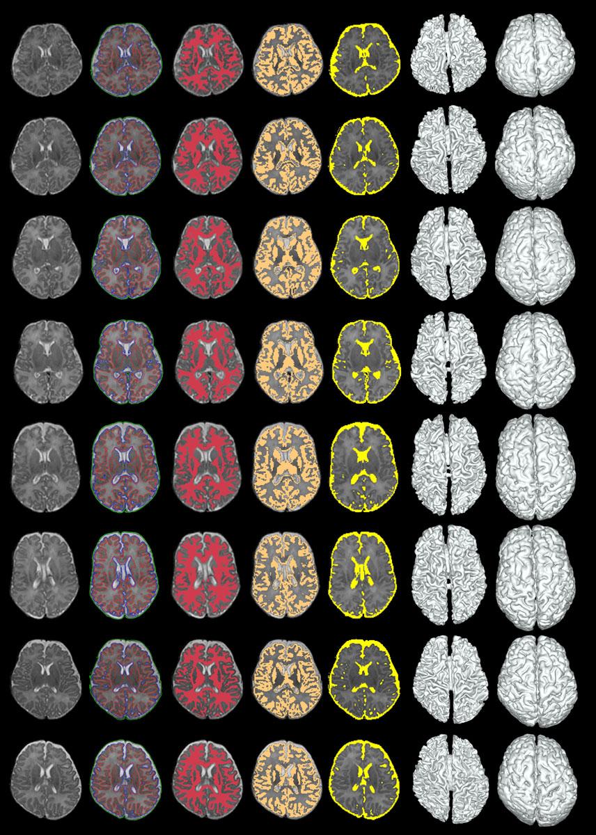 neonatal image segmentation neonate brain segmentation longitudinal image