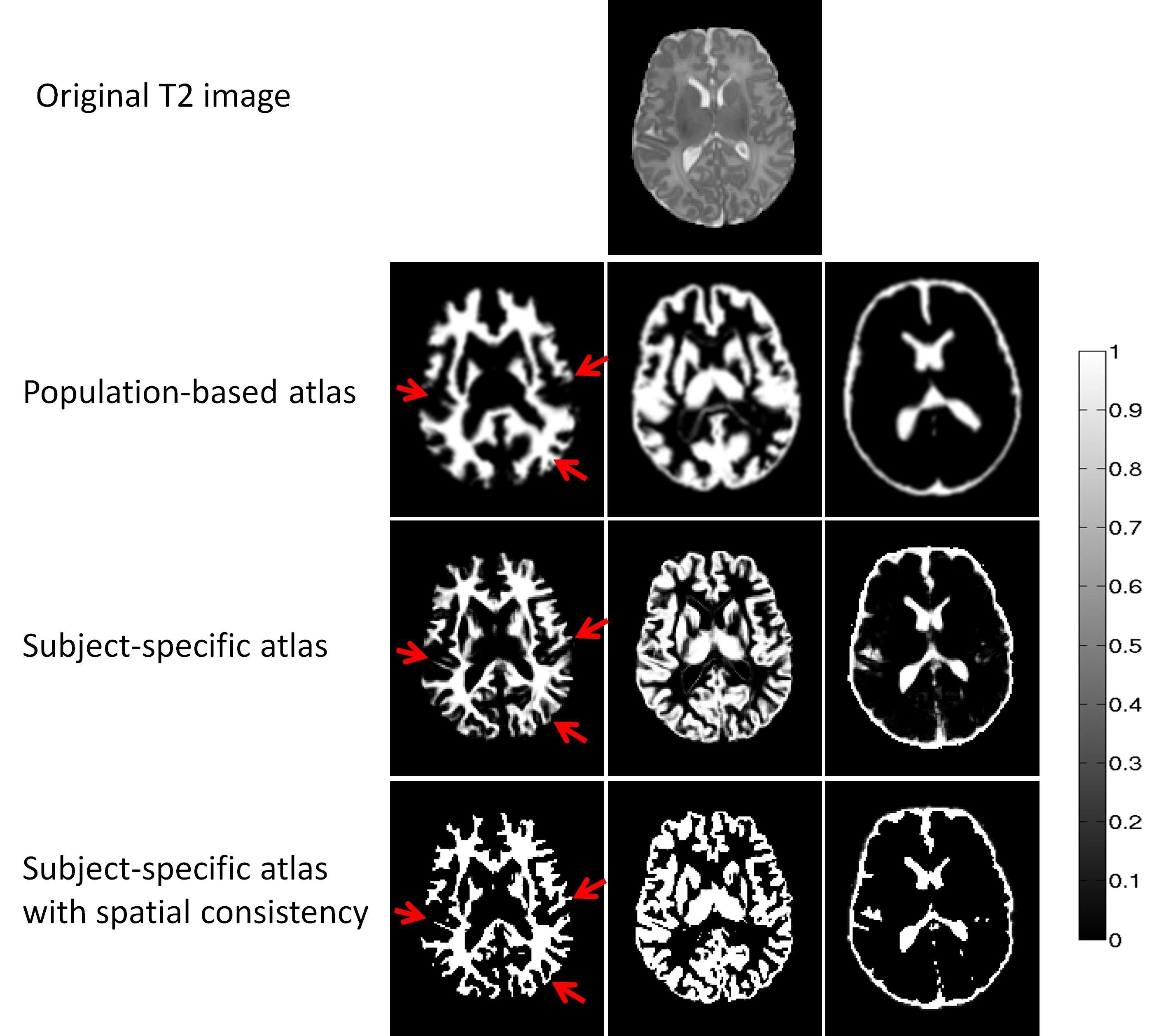 Neonatal Brain MR Image Segmentation using Patch-Driven Level Sets